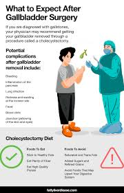 the cholecystectomy t