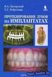 Реферат Ранее удаление молочных зубов Библиотека медицинской  Протезирование зубов на имплантатах В А Загорский Т Г Робустова