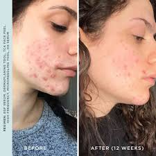 High Frequency For Acne: A Complete Guide