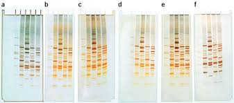 silver staining dna in polyacrylamide
