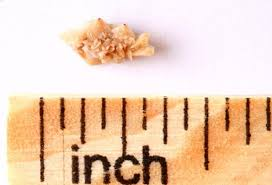 Kidney Stones Pain Symptoms Causes Passing A Kidney