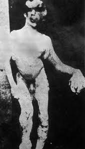 joseph merrick. Plain Joseph Nude With Joseph Merrick P
