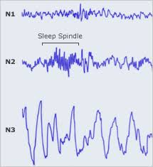 Sleep Patterns
