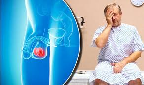 Image result for testicular cancer pictures