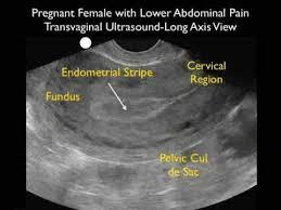 Ultrasound Interactive Case Study  Myoma Diagnostic Imaging