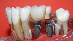 Imagini pentru imagini stomatologie