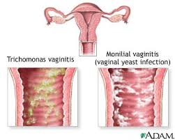 Vaginal Itching : Causes, Symptoms, Home Remedies and Treatment