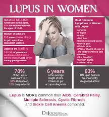 Sle Diet Chart 19 Ways To Heal Systemic Lupus Naturally Drjockers Com