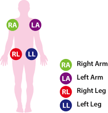 Ekg Lead Placement Chart 12 Lead Ecg Placement Aed Superstore Resource Center