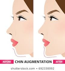 Chin Implant Size Chart