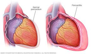 Pericarditis Symptoms And Causes Mayo Clinic