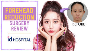 forehead reduction surgery l hairline