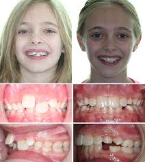 Before After Photos Corbridge Orthodontics Frisco Tx