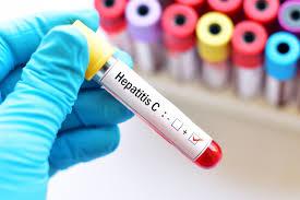 فيروس سي التهاب الكبد: الأعراض والعلاج وهل هو معدي؟ | عربي بوست