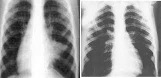 Принципы антибактериальной терапии пневмонии Журнал  Рентгенограммы грудной клетки больных с пневмонией