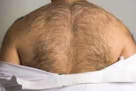 how to get rid of back hair permanently