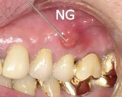 子供 歯茎 腫れ