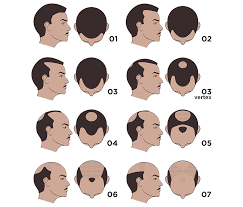 Male Pattern Baldness Stages Simple Ideas