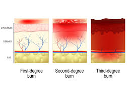 Sunburn Severity Chart Understanding A Burn Injury Model Systems Knowledge