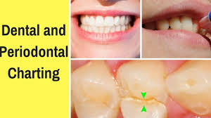 Dental And Periodontal Charting Youtube