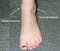 sprained ankle symptoms treatment