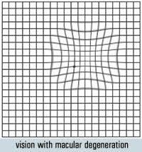 Eye Test Chart Grid 50 Unbiased Eye Chart Grid Lines