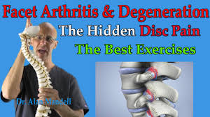 Whats A Facet Facet Arthritis Degeneration The Hidden Disc Pain Best Exercises