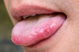 cold sores vs canker sores how to