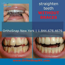 orthosnap is the very latest system for teeth straightening without braces it s quick easy