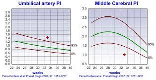 Growth And Doppler Ultrasound Maternal Fetal Medicine