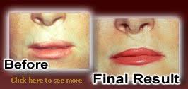 advanced cosmetics by malissa ek tulsa permanent makeup artist ba med spa and weight loss center