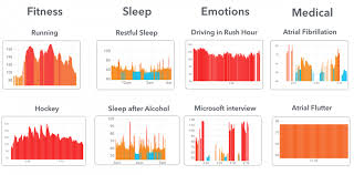 How To Read Cardiogram Chart Apple Watch Plus Cardiogram Can Spot Abnormal Heart Rhythm