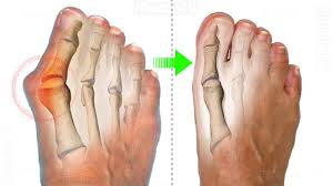 Image result for bunion wiki