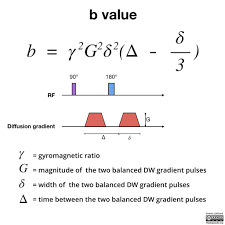 Mri Sequences Chart Mri Physics Diagrams Radiology Case Radiopaedia Org