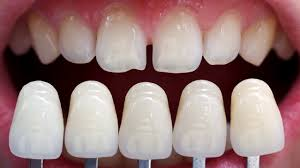 Faq What Are Veneers Dental Designs Of New England