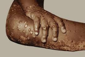 CDC Monitors Potential Monkeypox ...
