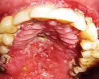ВИЧ инфекция полости рта причины симптомы диагностика и лечение ВИЧ инфекция полости рта