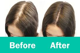 natural hair how to regrow hairs in thinning areas hair loss treatment you
