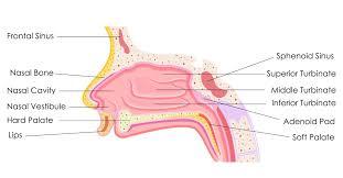 Sinus Chart Sinusitis Bronchiectasis
