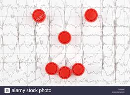 How To Read Cardiogram Chart Ekg Chart Stock Photos Ekg Chart Stock Images Alamy