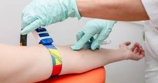 Testul de anticorpi pentru Covid-19: Pentru ce se face și cum se verifică dacă o persoană a fost sau nu infecatată cu noul coronavirus. Poveștile a doi pacienți – Ziarul de Gardă