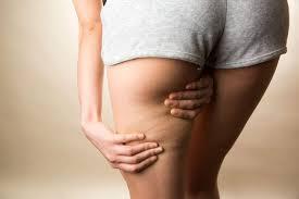 Effektive po übungen gegen cellulite
