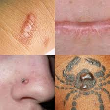 Lets Remember Keloid Scars Keloid Brow Works By Suriani Wong