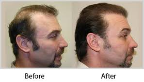 hair transplant how it works hair transplant surgery in bangalore hair restoration nu