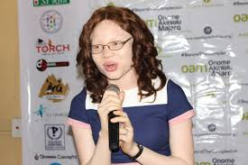 Image result for international Albinism Awareness Day, 2017 by OAM Foundation