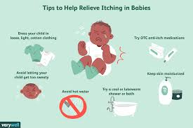 itch relief for babies
