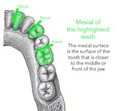 Surfaces Of The Teeth Chart Dental Anatomy