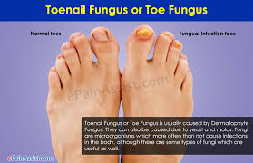 what causes toenail fungus or toe fungus