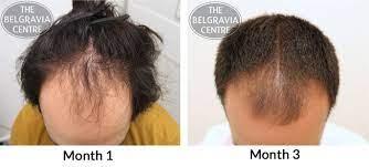 남성 탈모 치료 kirkland minoxidil