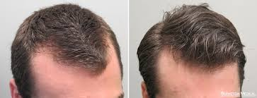 hair loss treatment prevent hair loss